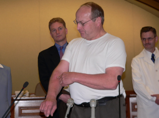 Representative Al Ott shows the scar from his skin cancer. (Photo: Jackie Johnson)