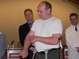 Representative Al Ott shows the scar from his skin cancer. (Photo: Jackie Johnson)